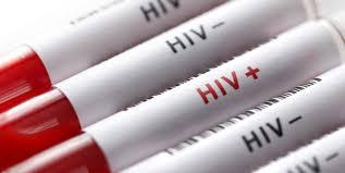 واکنش وزیر بهداشت به ماجرای ابتلای اهالی روستایی در لردگان به ایدز