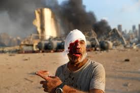 انفجار مهیب در بیروت بیش از ۱۰۰ تن کشته و ۵ هزار نفر زخمی شدهاند.
